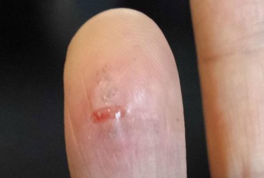 gs3 burnt finger